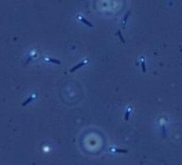 ネコの腸内フローラを改善する腸内細菌のエサ成分と療養食の比較(おすすめの便秘、下痢用フード)